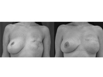 Cirugía reconstructiva - 499911