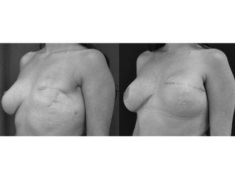 Cirugía reconstructiva - 499912