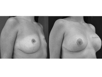 Cirugía reconstructiva - 499913