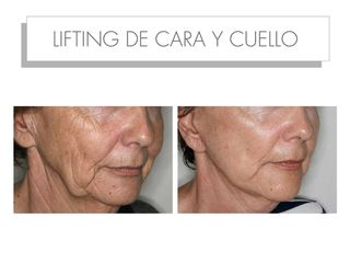 Antes y después LIFTING DE CARA Y CUELLO