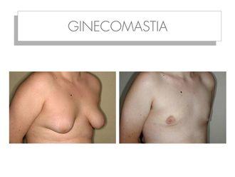 Ginecomastia - 565210
