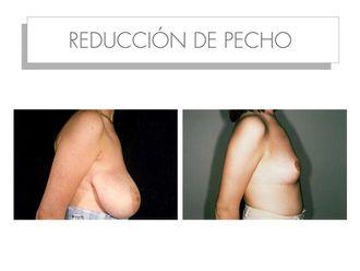 Reducción senos - 565212