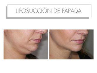Liposucción-565213