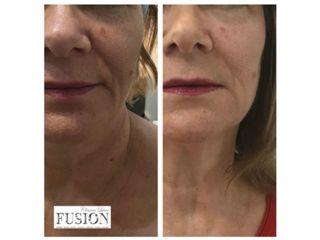 Antes y después tratamiento HIFU