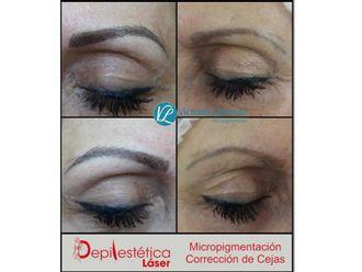 Micropigmentación-623586