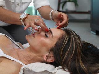 tratamiento de belleza botox