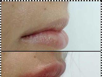 Ácido hialurónico-625008