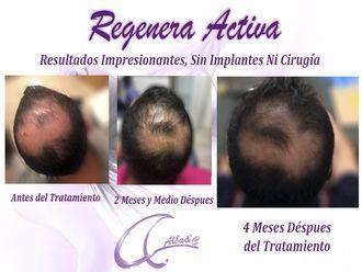 Tratamiento capilar - 547896