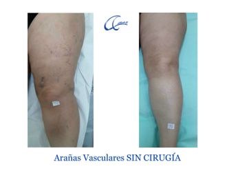 Tratamiento varices - 644992