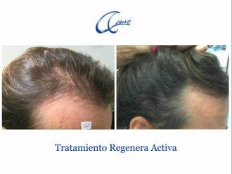 Tratamiento capilar - 644993