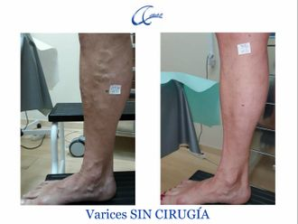 Tratamiento varices - 644994