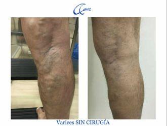 Tratamiento varices - 644995