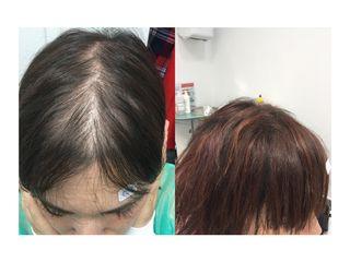 Antes y después Regenera capilar - ClinicaAlbayC