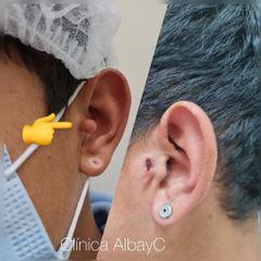 Apéndice Preauricular - ClinicaAlbayC