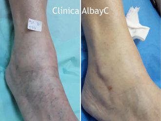 Tratamiento varices - 789712