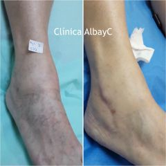 Varices - ClinicaAlbayC