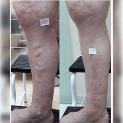 Tratamiento varices - ClinicaAlbayC
