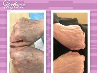 Antes y después tratamiento Láser Eliminación Manchas