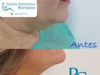 Medicina estética-636874
