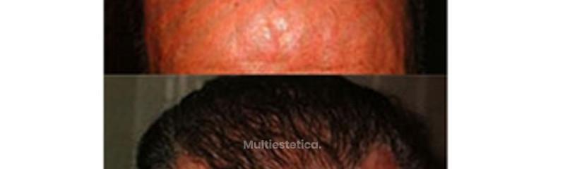 Microinjertos capilares