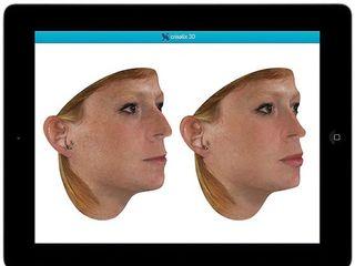 Crisalix: simulaciones 3D