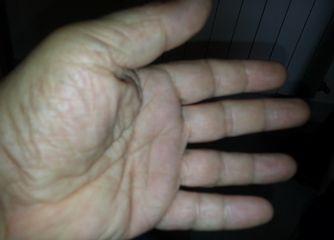 La mano que cura