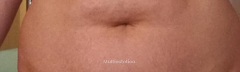 Antes de una abdominoplastia