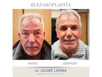 Blefaroplastia-649456