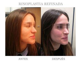 Antes y después Rinoplastia - Dr. Jaume Lerma Goncé