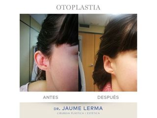 Otoplastia - Dr. Jaume Lerma Goncé