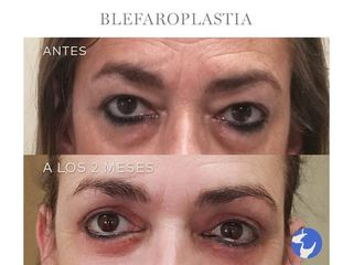 Antes y después Blefaroplastia - Dr. Jaume Lerma Goncé