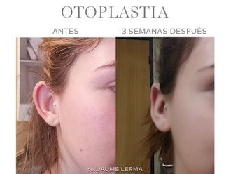 Otoplastia-741771