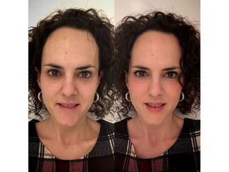 Rejuvenecimiento facial-649803