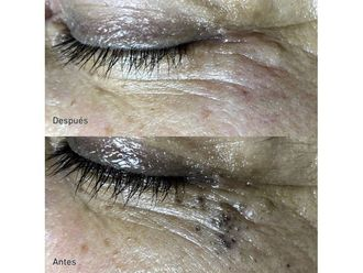 Tratamiento antiacné-649806