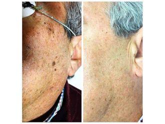 Rejuvenecimiento facial-649807