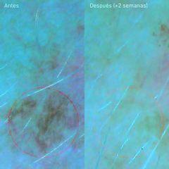 Tratamientos antimanchas - Estela Belleza