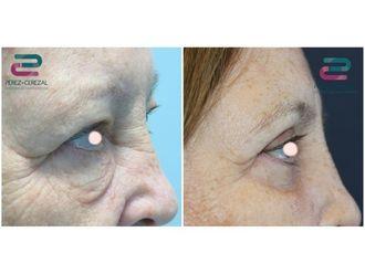 Cirugía estética-685048