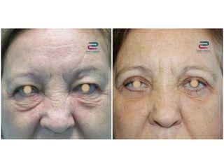 Antes y después Blefaroplastia - Doctor Pérez-Cerezal