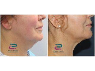 Antes y después Liposucción de papada - Doctor Pérez-Cerezal