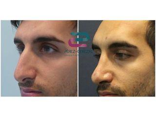 Antes y después Rinoplastia - Doctor Pérez-Cerezal