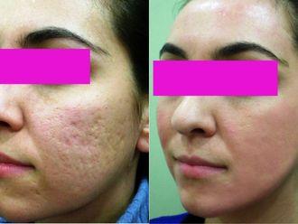 Tratamiento antiacné-412630