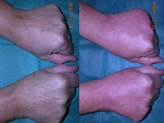 Tratamiento antimanchas-496739