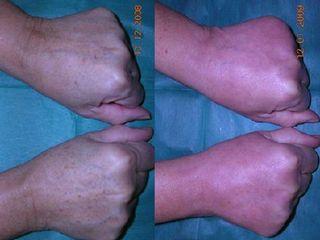 Antes y después Rejuvenecimiento de manos