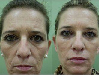 Rejuvenecimiento facial-496741