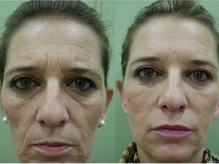 Antes y después Bioplastia