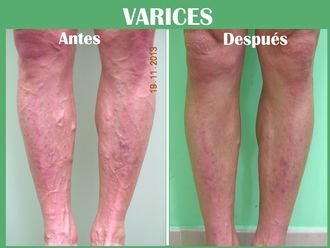 Tratamiento varices-573840