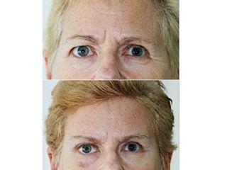 Antes y después Lifting de cola de cejas