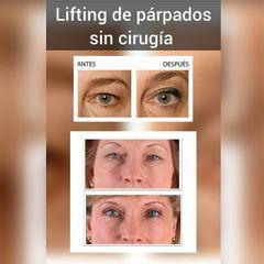 Antes y después Blefaroplastia - Renobell