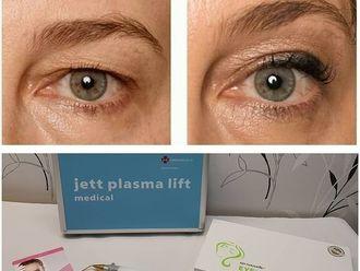 Blefaroplastia-737672