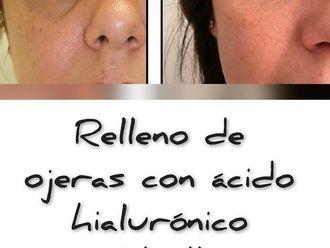 Medicina estética-737677